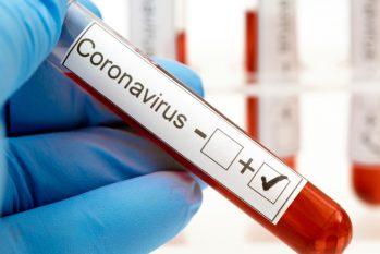 FVS-AM confirmou mais quatro óbitos por Covid-19, elevando para 4.031 o total de mortes pela doença no Amazonas (Reprodução)
