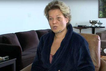 Em entrevista ao SBT News, Joice Hasselmann mostra ferimentos no rosto (Reprodução)