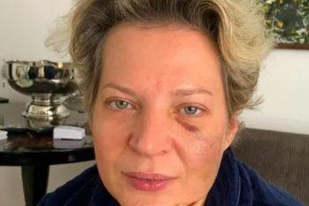 Joice Hasselmann denunciou episódio de agressão no último dia 18 (Reprodução)